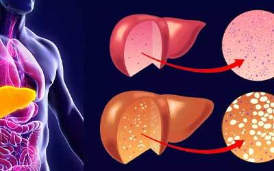 Стеатоз - признаки жировой дистрофии - Алко-помощь